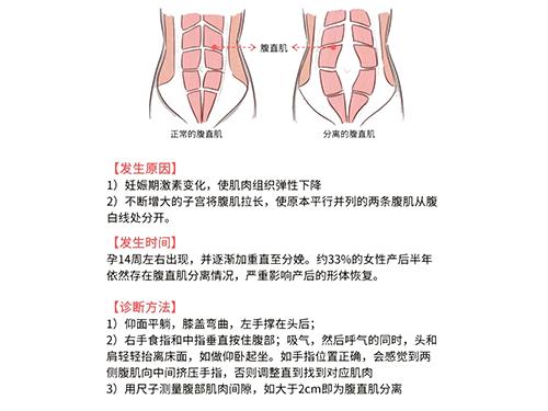 腹直肌修復